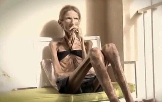 Skinniest Person